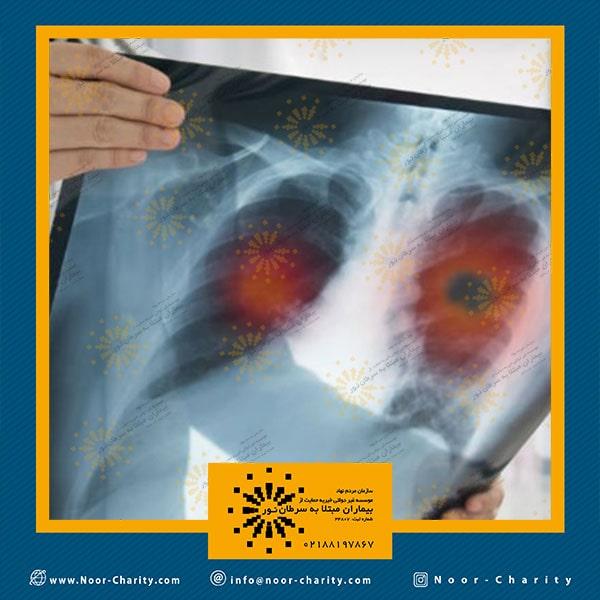 ایمونوتراپی چشم اندازی برای درمان سرطان های لاعلاج